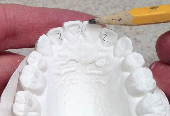 reset tooth – Retainer Designer | Designer Retainer